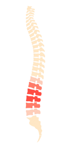 sciatica, sciaitic pain nerve compression spine back pain Osteopath Bodytonic clinic London