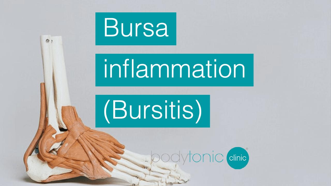 Bursa inflammation Bursitis london bodytonic clinic