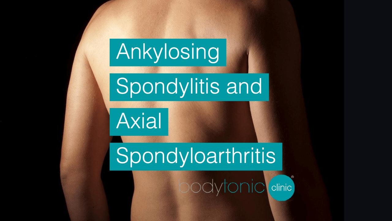 Ankylosing Spondylitis and Axial Spondyloarthritis bodytonic clinic London