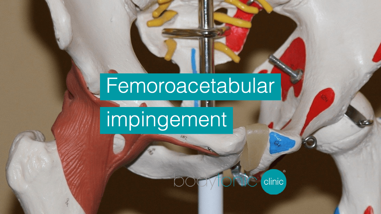 Femoroacetabular impingement bodytonic clinic London