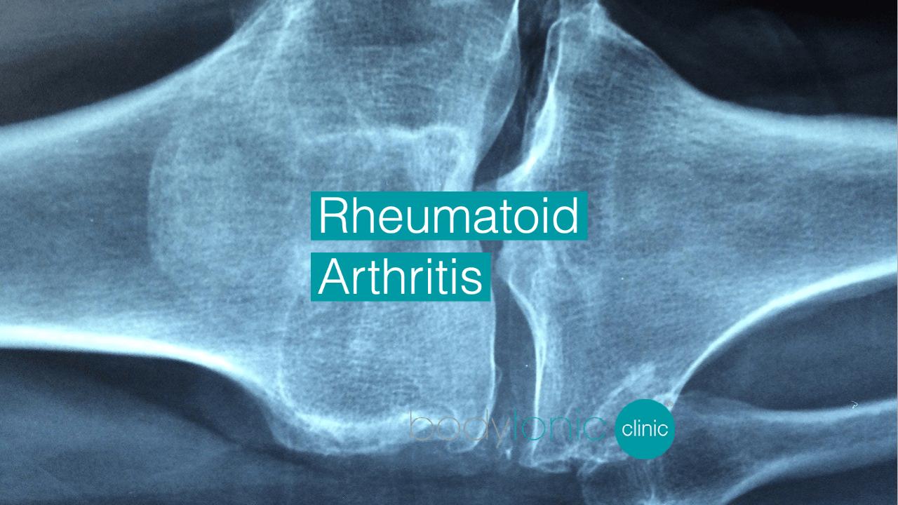 Rheumatoid Arthritis bodytonic clinic London