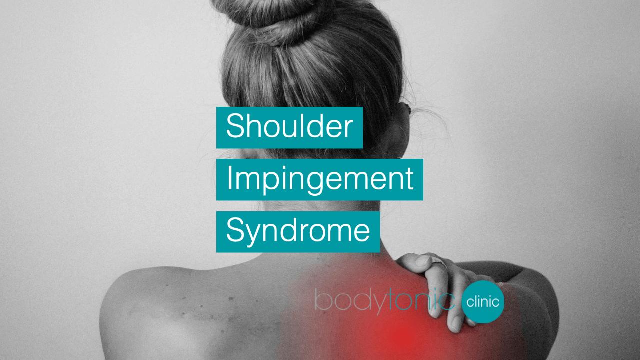 Shoulder Impingement Syndrome bodytonic clinic SE16 london