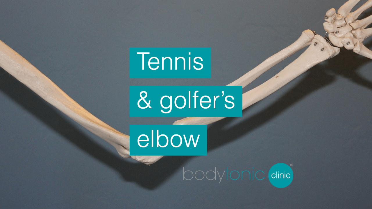 Tennis and Golfers Elbow bodytonic clinic SE16 London