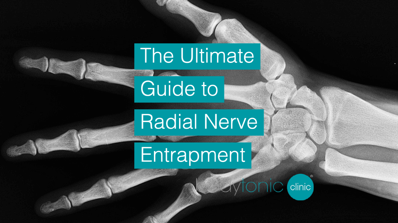 The Ultimate Guide to Radial Nerve bodytonic clinic SE16 London