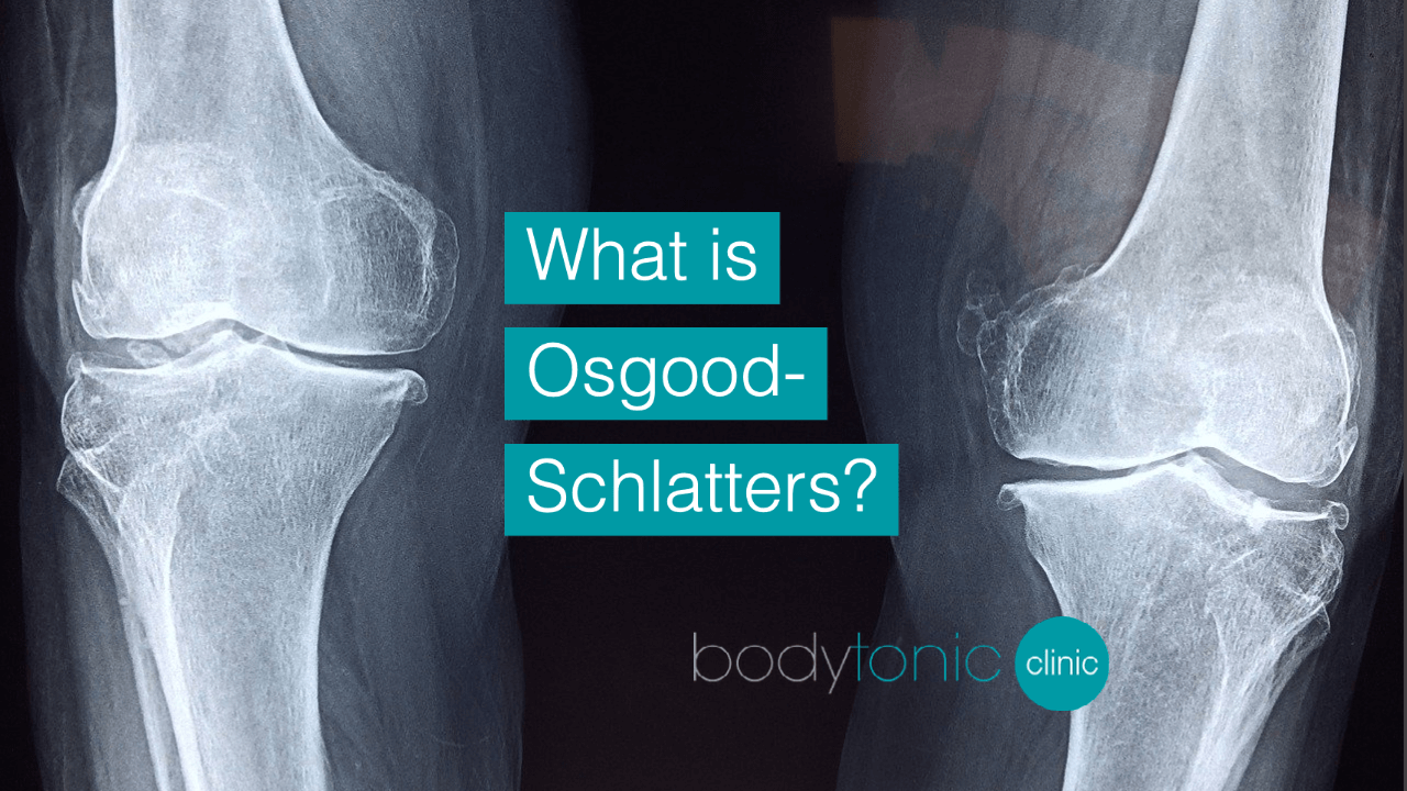 What is Osgood-Schlatters bodytonic clinic SE16 London