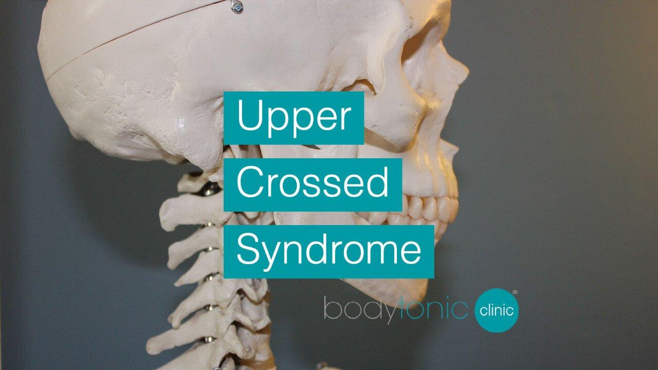 Upper Crossed Syndrome bodytonic clinic SE16 London