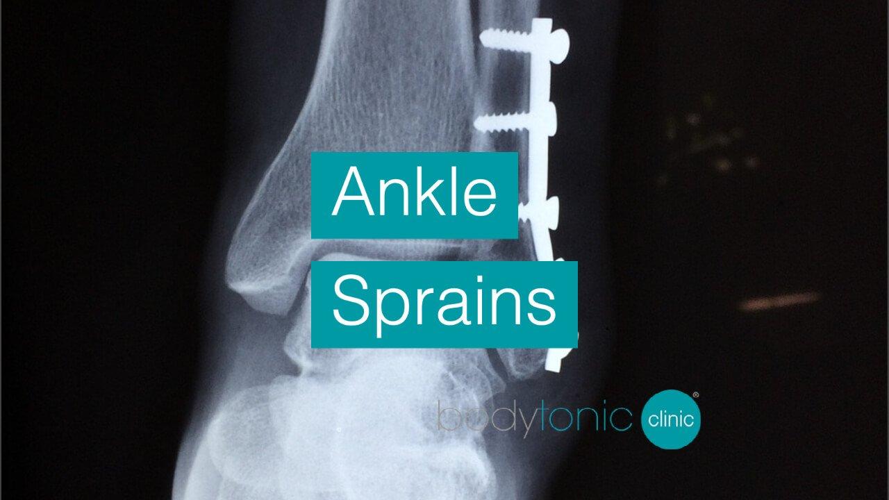 Ankle Sprains bodytonic clinic SE16 London