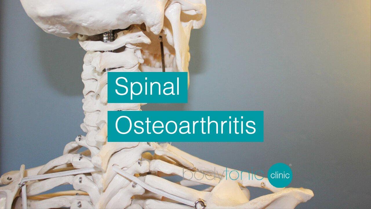 Spinal Osteoarthritis bodytonic clinic SE16