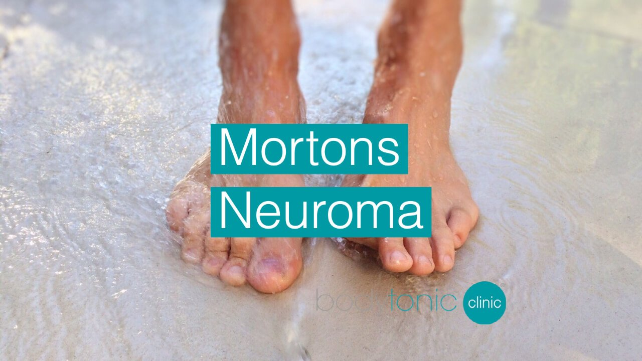 Mortons Neuroma bodytonic clinic SE16