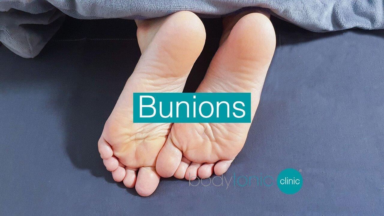 Bunions bodytonic clinic SE16 London